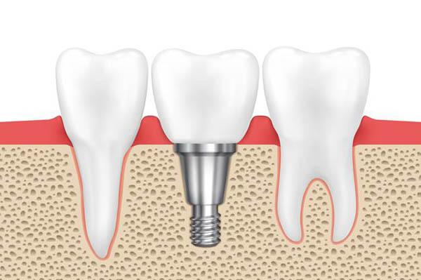 Почему зубной имплант отторгается. Основные причины